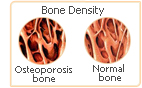 red clover bone density